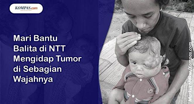 Bantu Balita Mengidap Tumor di Sebagian Wajahnya