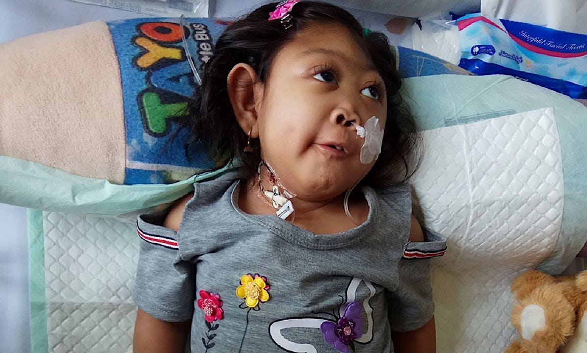 Perjuangan Navisa Melawan 6 Penyakit Akut
