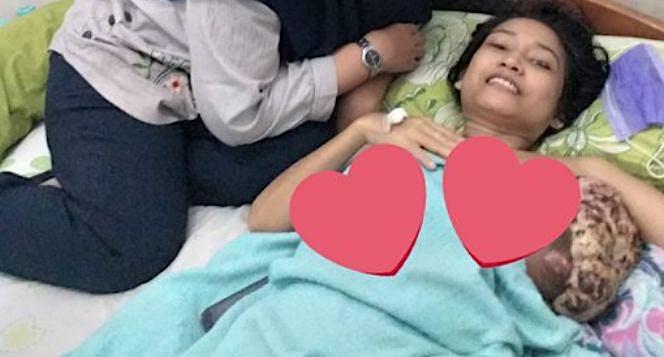 Bantu bu Hani sembuh dari kanker stadium 4