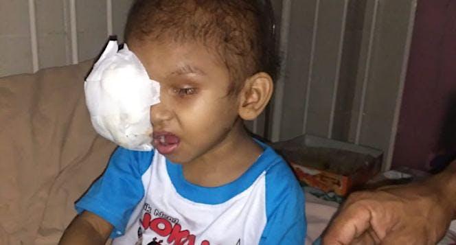 Bantu Aulia Sembuh Dari Retinoblastoma
