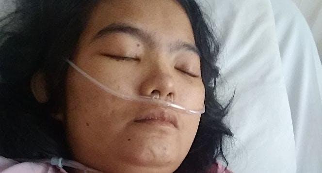 Bantu Reny melawan lupus