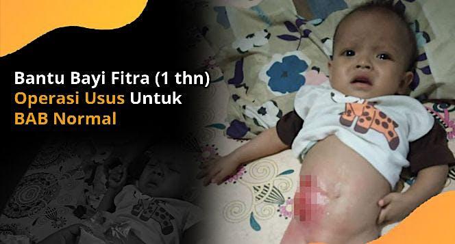 Bantu Bayi Fitra Operasi Usus