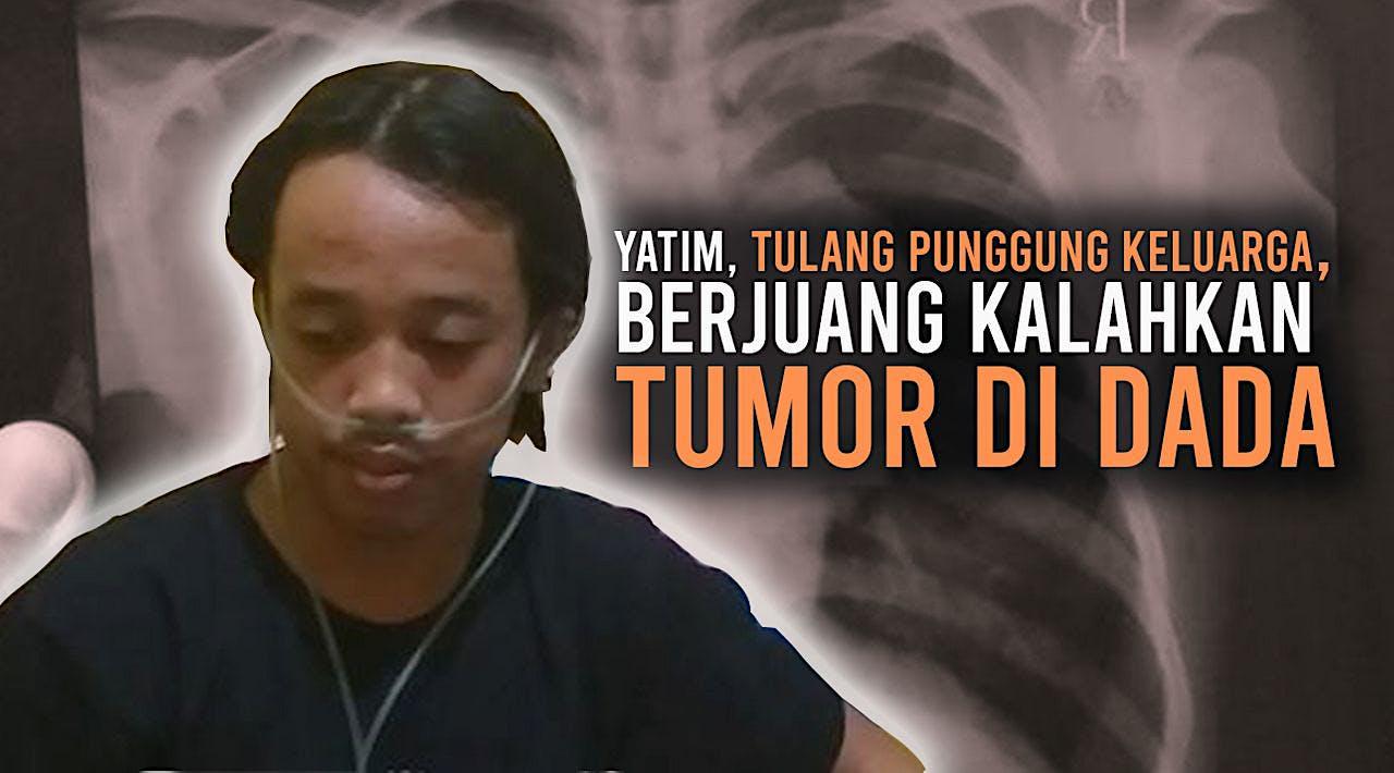 Bantu Yoga Sembuh dari Tumor di Dada