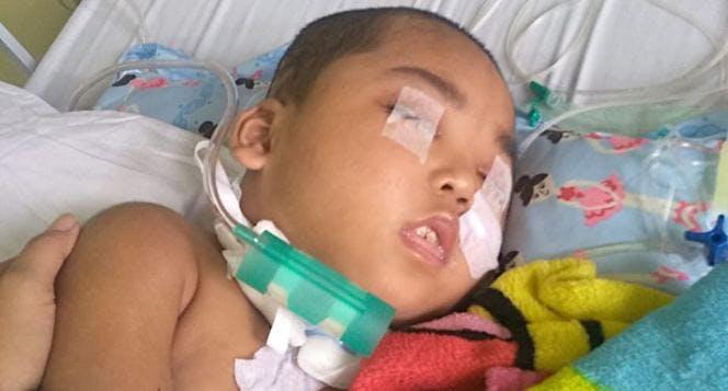 Bantu Reza Lawan Cerebral Palsy & Pendarahan Otak