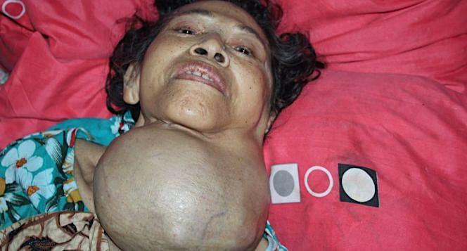 Bantu Mbah Sukaria Melawan Kanker di Leher