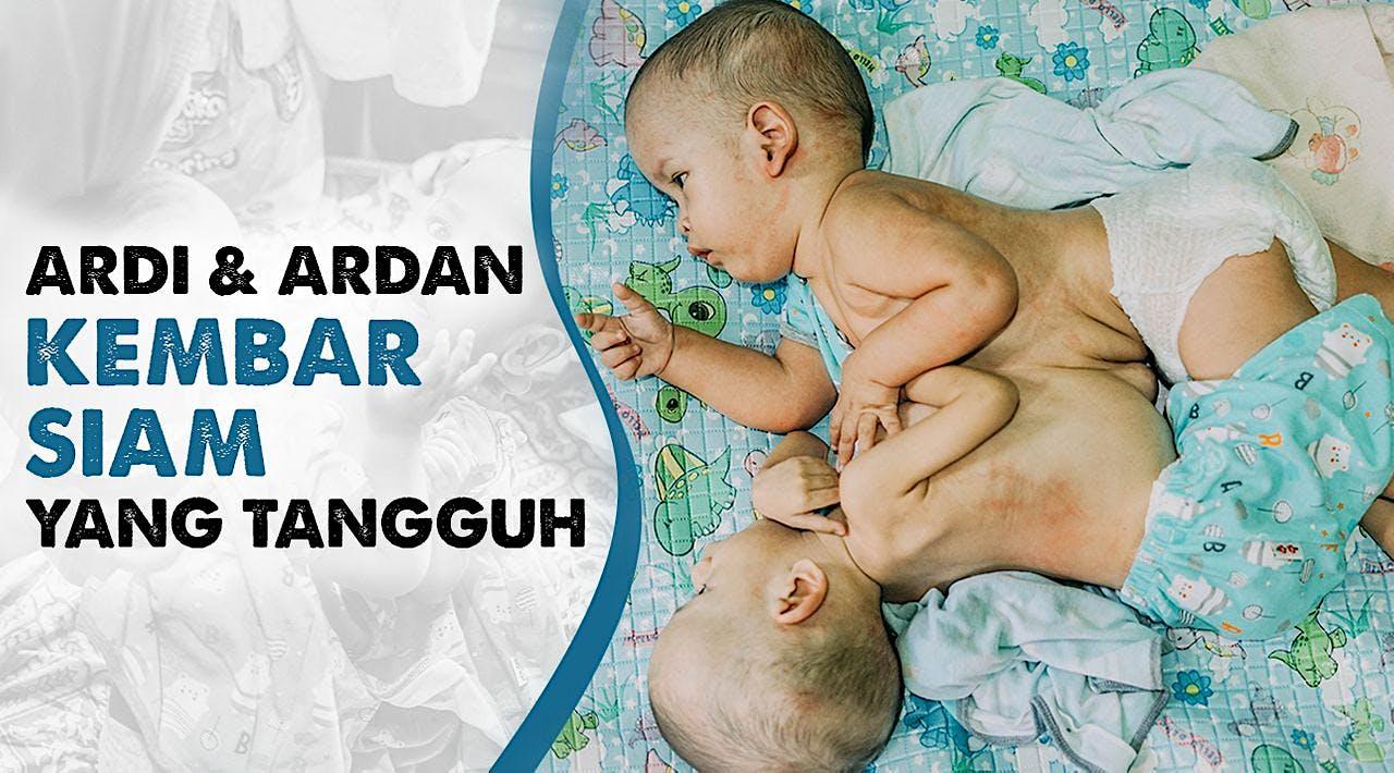 Ardi & Ardan, Hidup Dengan Organ Hati Menempel