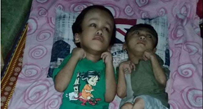 Tolong Kakak & Adik Penderita Hidrosefalus Ini