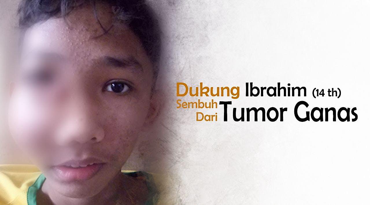 Yuk, Bantu Ibrahim Sembuh Dari Tumor Ganas!