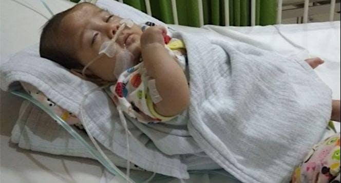 Bantu Kenzie operasi Atresia Esofagus