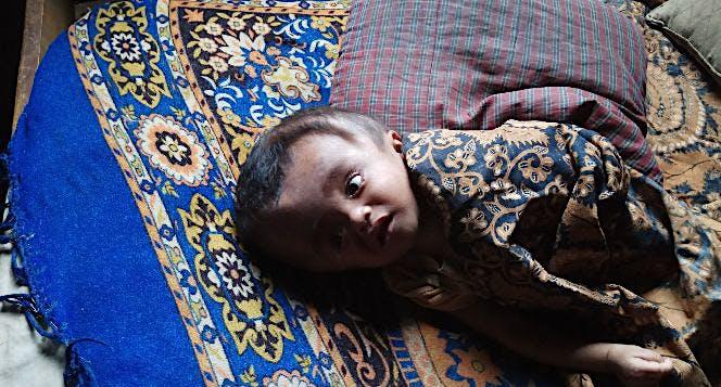 Bantu Bahar Penderita Hidrosepalouse untuk operasi