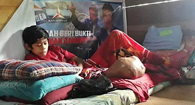 Bantu Fadly Tana Toraja Sulsel Lawan Tumor Ganas
