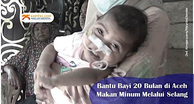 Kisah Pilu Bayi di Aceh Makan Minum Melalui Selang