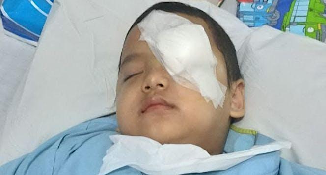 Adik Farih 4 Tahun Melawan Kanker Mata