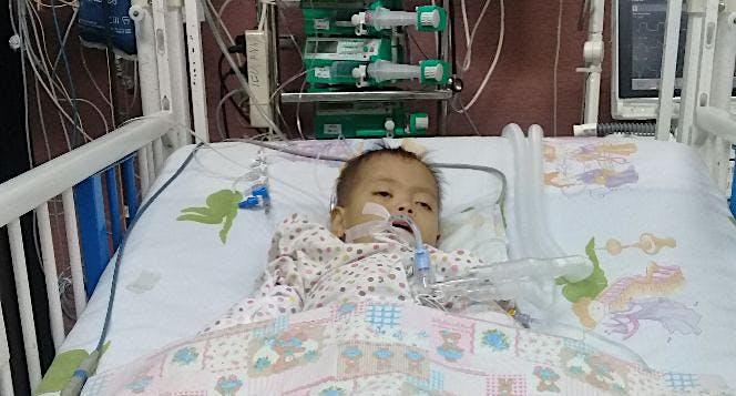 Bantu Abid down syndrome jantung bocor ASD multipe