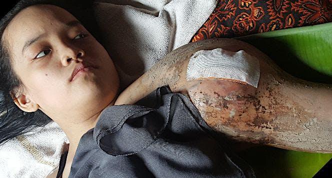 Bantu nilam melawan kanker tulang